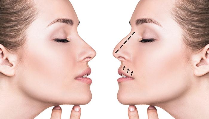 Rhinoplasty Los Angeles - Nose Surgery - Rhinoplasty Specialist
