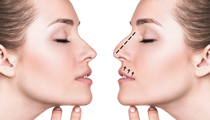 Rhinoplasty Specialist Los Angeles | Nose Surgery | LAMC
